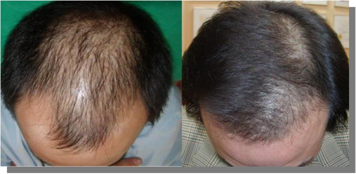Plazma FSL vs łysienie efekty